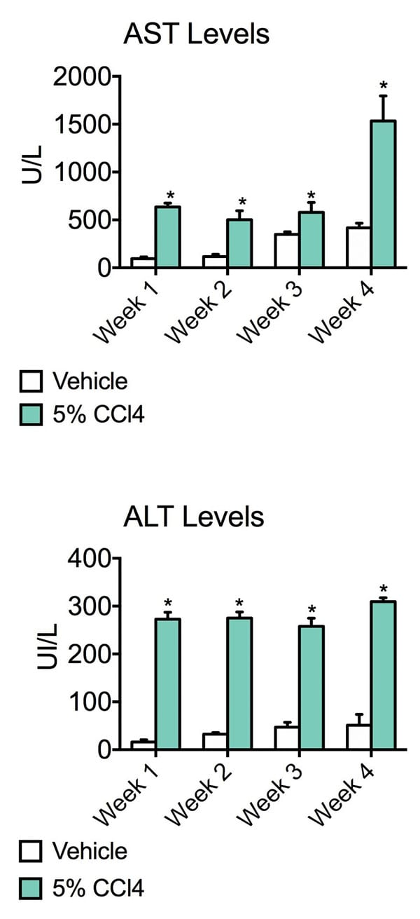 Liver Fibrosis Models show liver damage as the graph shows AST and ALT levels significantly elevated in CCl4 administered animals
