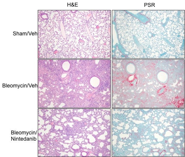 Staining images show significant increases in both interstitial fibrosis and inflammation in the lung samples of Bleomycin/Vehicle group