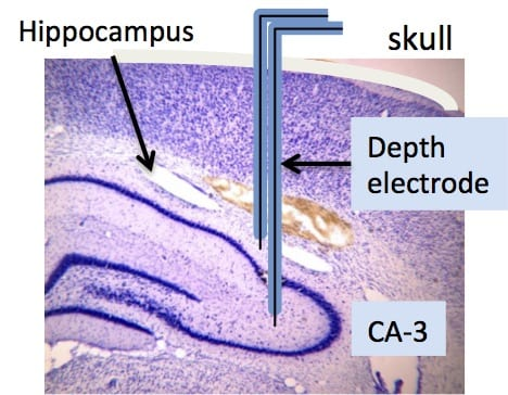 Illustration of bipolar depth electrode implanted into the CA3 region of the hippocampus.