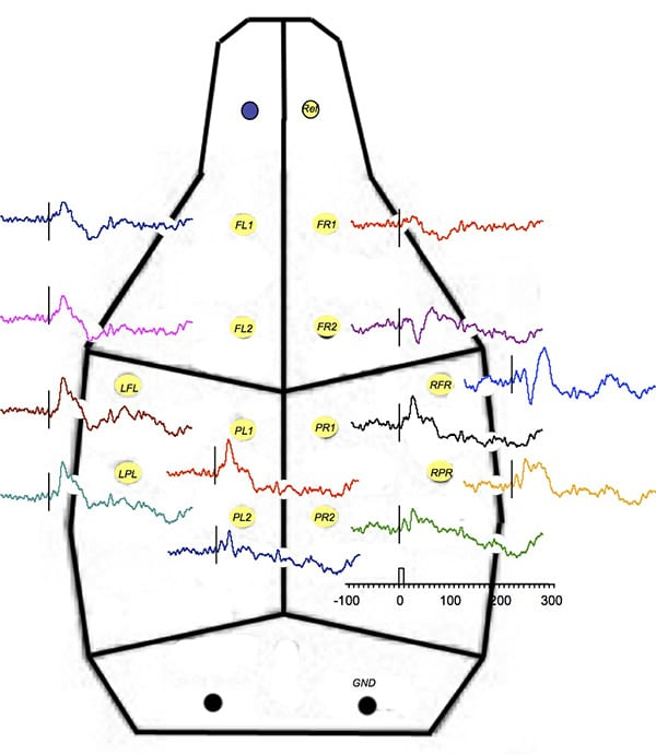 Average evoked potentials implanted with 12 separate chronic supra-dural electrodes using a common reference over the olfactory bulb.