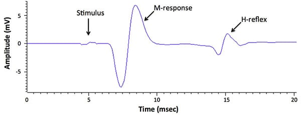 Stimulation of the tibial nerve at the ankle results in a short-latency M-response in the plantar foot muscle followed by an H-response approximately 7 msec later.